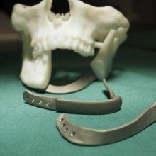 Patient specific mandibula reconstrution plate